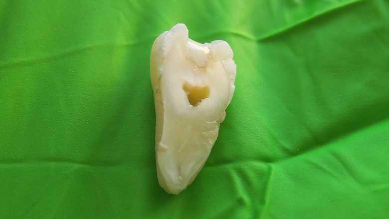 瑞典研究发现: 新型牙齿重建材料能够改善现有的以丙烯酸脂为基础的填充材料