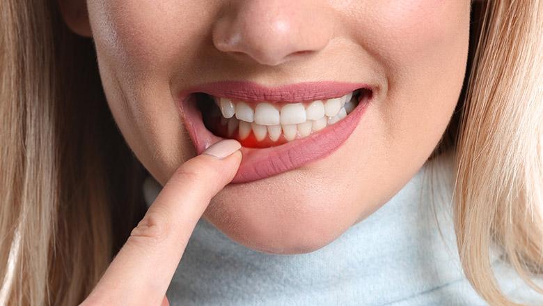牙周病学正在逐渐获得全欧盟认可