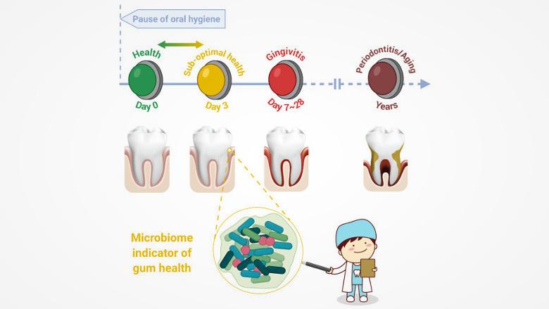 """中科院研究人员提出""""牙龈亚健康""""概念及其与牙龈牙周疾病的关联"""