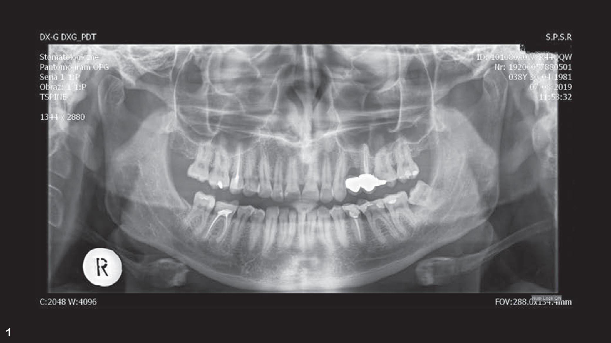 伴复杂根管系统的左侧上颌第一磨牙的 牙髓治疗